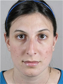 Rhinoplasty Before Photo by Paul Parker, MD; Paramus, NJ - Case 35079