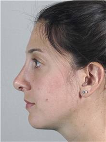Rhinoplasty After Photo by Paul Parker, MD; Paramus, NJ - Case 35079
