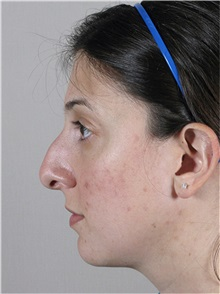 Rhinoplasty Before Photo by Paul Parker, MD; Paramus, NJ - Case 35079
