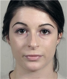 Rhinoplasty Before Photo by Paul Parker, MD; Paramus, NJ - Case 35094