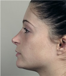 Rhinoplasty After Photo by Paul Parker, MD; Paramus, NJ - Case 35094