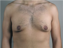 Male Breast Reduction Before Photo by Paul Parker, MD; Paramus, NJ - Case 35097