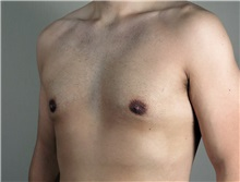 Male Breast Reduction After Photo by Paul Parker, MD; Paramus, NJ - Case 35097