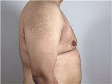 Male Breast Reduction After Photo by Paul Parker, MD; Paramus, NJ - Case 35100