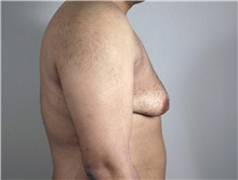 Male Breast Reduction Before Photo by Paul Parker, MD; Paramus, NJ - Case 35100
