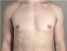 Male Breast Reduction After Photo by Paul Parker, MD; Paramus, NJ - Case 35101