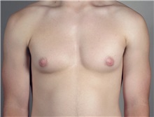 Male Breast Reduction Before Photo by Paul Parker, MD; Paramus, NJ - Case 35101