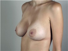 Breast Augmentation After Photo by Paul Parker, MD; Paramus, NJ - Case 35102