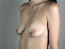 Breast Augmentation Before Photo by Paul Parker, MD; Paramus, NJ - Case 35102