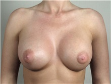 Breast Augmentation After Photo by Paul Parker, MD; Paramus, NJ - Case 35103