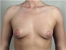 Breast Augmentation Before Photo by Paul Parker, MD; Paramus, NJ - Case 35103