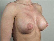 Breast Augmentation After Photo by Paul Parker, MD; Paramus, NJ - Case 35103