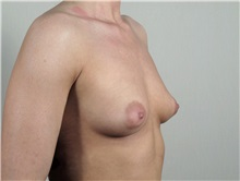 Breast Augmentation Before Photo by Paul Parker, MD; Paramus, NJ - Case 35103