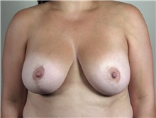 Breast Augmentation After Photo by Paul Parker, MD; Paramus, NJ - Case 35104