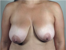 Breast Augmentation Before Photo by Paul Parker, MD; Paramus, NJ - Case 35104