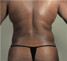Liposuction After Photo by Paul Parker, MD; Paramus, NJ - Case 35106