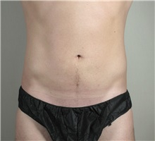 Liposuction After Photo by Paul Parker, MD; Paramus, NJ - Case 35107