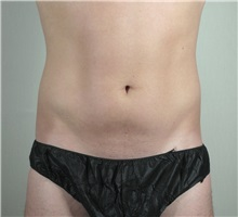 Liposuction Before Photo by Paul Parker, MD; Paramus, NJ - Case 35107