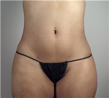 Liposuction After Photo by Paul Parker, MD; Paramus, NJ - Case 35108