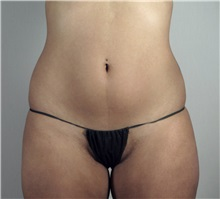 Liposuction Before Photo by Paul Parker, MD; Paramus, NJ - Case 35108