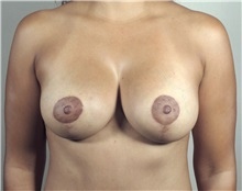 Breast Lift After Photo by Paul Parker, MD; Paramus, NJ - Case 35111