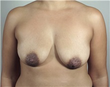 Breast Lift Before Photo by Paul Parker, MD; Paramus, NJ - Case 35111
