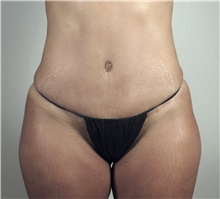 Tummy Tuck After Photo by Paul Parker, MD; Paramus, NJ - Case 35112