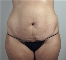 Tummy Tuck Before Photo by Paul Parker, MD; Paramus, NJ - Case 35112