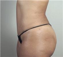 Tummy Tuck After Photo by Paul Parker, MD; Paramus, NJ - Case 35112