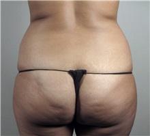 Tummy Tuck Before Photo by Paul Parker, MD; Paramus, NJ - Case 35112