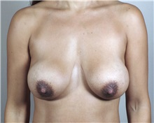 Breast Lift Before Photo by Paul Parker, MD; Paramus, NJ - Case 35114