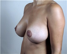 Breast Lift After Photo by Paul Parker, MD; Paramus, NJ - Case 35114