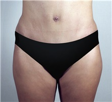 Tummy Tuck After Photo by Paul Parker, MD; Paramus, NJ - Case 35115