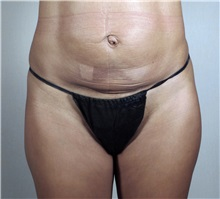 Tummy Tuck Before Photo by Paul Parker, MD; Paramus, NJ - Case 35115