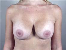 Breast Augmentation After Photo by Paul Parker, MD; Paramus, NJ - Case 35116
