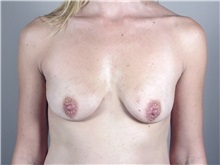 Breast Augmentation Before Photo by Paul Parker, MD; Paramus, NJ - Case 35116
