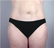 Tummy Tuck After Photo by Paul Parker, MD; Paramus, NJ - Case 35119
