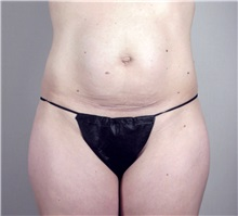 Tummy Tuck Before Photo by Paul Parker, MD; Paramus, NJ - Case 35119