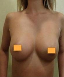 Breast Augmentation After Photo by Joseph Pober, MD, FACS; Ridgewood, NJ - Case 37203