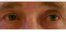 Eyelid Surgery After Photo by Joseph Pober, MD, FACS; New York, NY - Case 37204