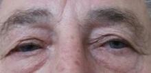 Eyelid Surgery Before Photo by Joseph Pober, MD, FACS; New York, NY - Case 37204