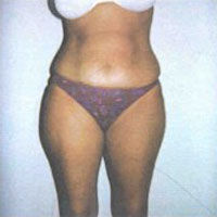 Tummy Tuck Picture