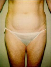 Liposuction Picture