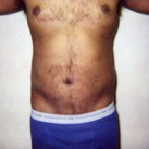Liposuction After Photo by John Cozzone, MD; Paramus, NJ - Case 7063