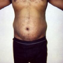 Liposuction Before Photo by John Cozzone, MD; Paramus, NJ - Case 7063