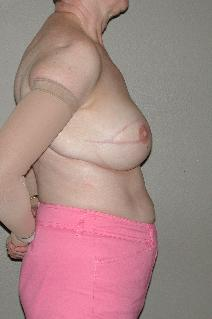 Breast Reconstruction After Photo by Dann Leonard, MD; Salem, OR - Case 10226