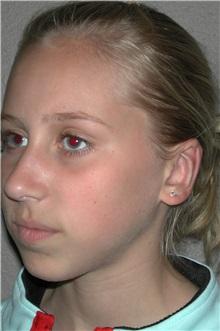 Ear Surgery After Photo by Dann Leonard, MD; Salem, OR - Case 10228