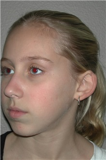 Ear Surgery Before Photo by Dann Leonard, MD; Salem, OR - Case 10228
