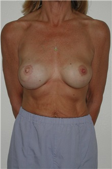 Breast Reconstruction After Photo by Dann Leonard, MD; Salem, OR - Case 10230