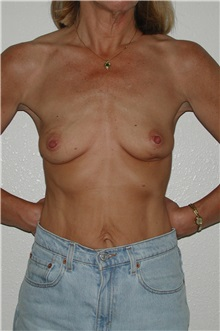 Breast Reconstruction Before Photo by Dann Leonard, MD; Salem, OR - Case 10230